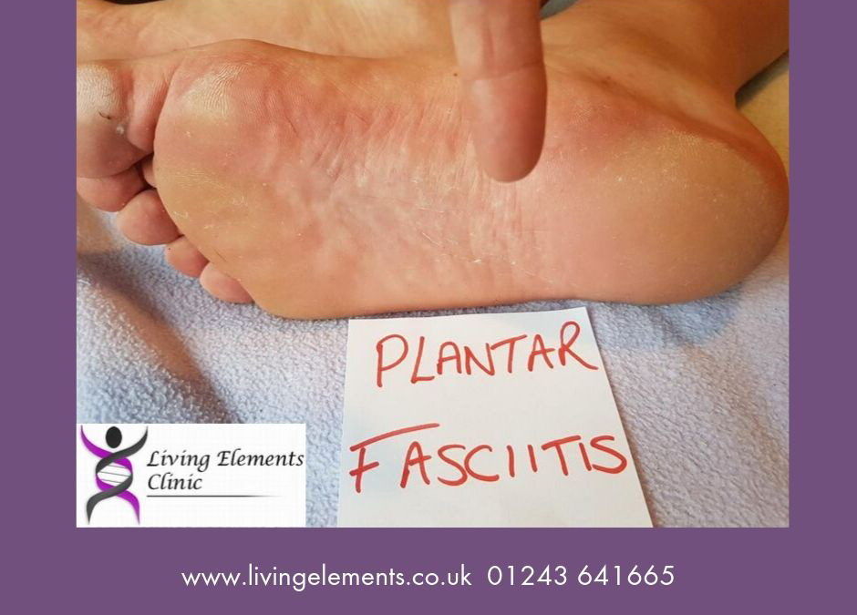 Plantar Fasciitis – a pain in the foot