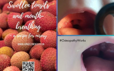 Tonsillitis client tries an Osteopathic approach